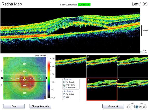 Retina Line Scan Abnormal