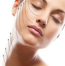 Thread-Lift-Thread-FaceLift-Treatment-in