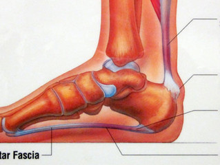 Up to 65 percent of patients with chronic plantar fasciitis may benefit from shockwave treatment