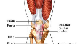 Everything You Need to Know About Patellar Tendonitis