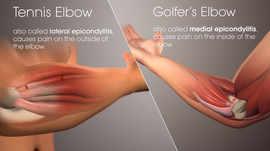 Tennis Elbow / Golfer's Elbow are Debilitating!