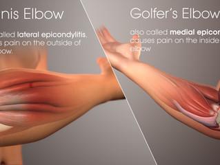 Tennis Elbow / Golfer's Elbow are Debilitating!