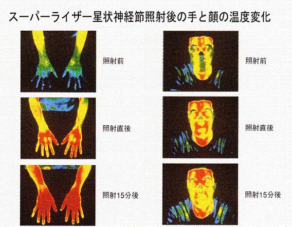 スーパーライザー サーモグラフィー画像.jpg