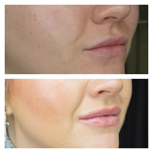 dermal filler treatment hale Altrincham