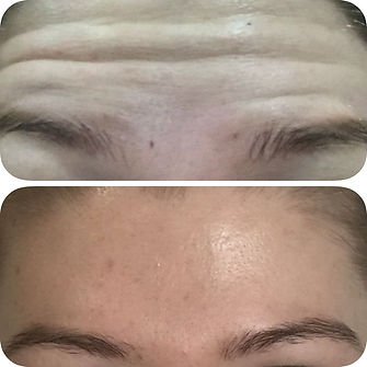 botox treatment hale Altrincham