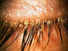 Eyelash Extension After-Care: Preventing Lash Mite Mania and Blepharitis