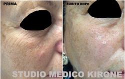 FILLER - STUDIO MEDICO KIRONE - ROMA_edited