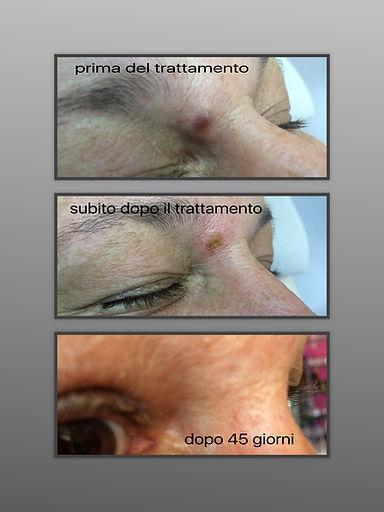 RIMOZIONE NEI - STUDIO MEDICO KIRONE  - ROMA