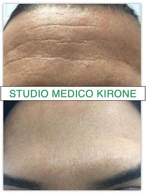 BOTOX -STUDIO MEDICO KIRONE
