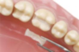 Зубной микро-протез. Установка микро-протезов и вкладок. Стоимость, цена