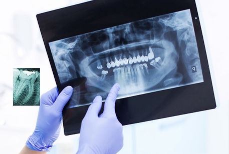 Панорамный рентгеновский снимок зубов - Клиника Доктора Ландес на юго-западе Москвы