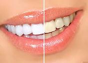 Отбеливание зубов Zoom, Doctor Smile - низкие цены - Клиника Доктора Ладес