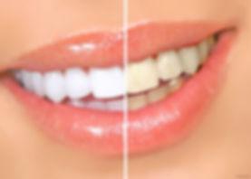 Отбеливание зубов системой ZOOM в клинике Doctor Landes в Москве - фото до и после
