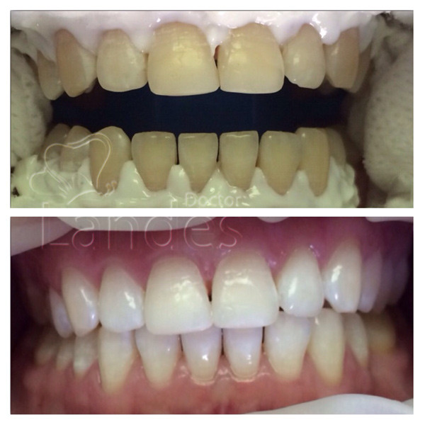 Отбеливание зубов фото до и после 1