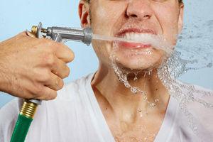 Чистка зубного камня и налёта