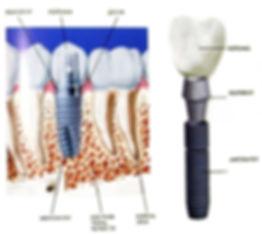 Коронка на имплант - установка, цена за 1 зуб  - Клиника Доктора Ландес
