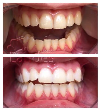 Отбеливание зубов - фото до и после 3