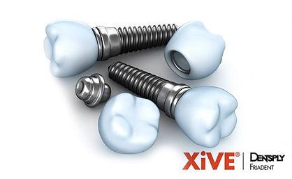 Зубные импланты Xive