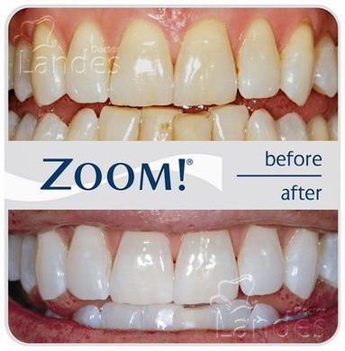 Отбеливание зубов - фото до и после 2