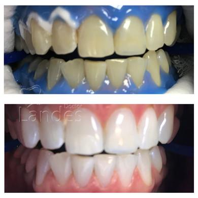Отбеливание зубов - фото до и после 4