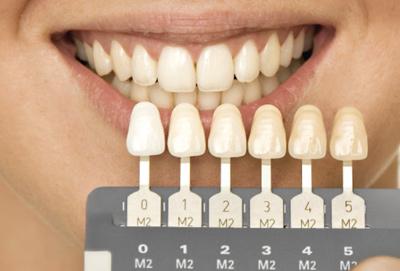 Как заметен эффект отбеливания зубов ZOOM