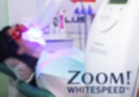 Отбеливание зубов ZOOM-4 в клинике Doctor Landes в Москве