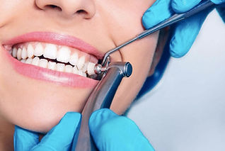 Чистка зубов перед отбеливанием в клинике Docotr Landes включена в цену