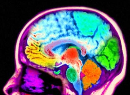 Research shows Meditation causes Changes in the Brain.