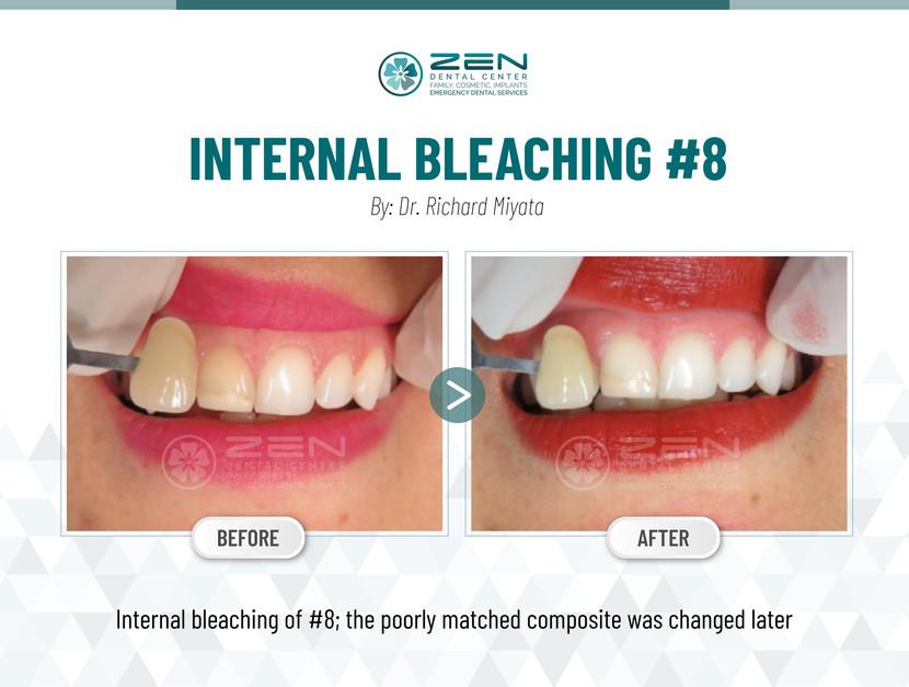 Internal Bleaching #8