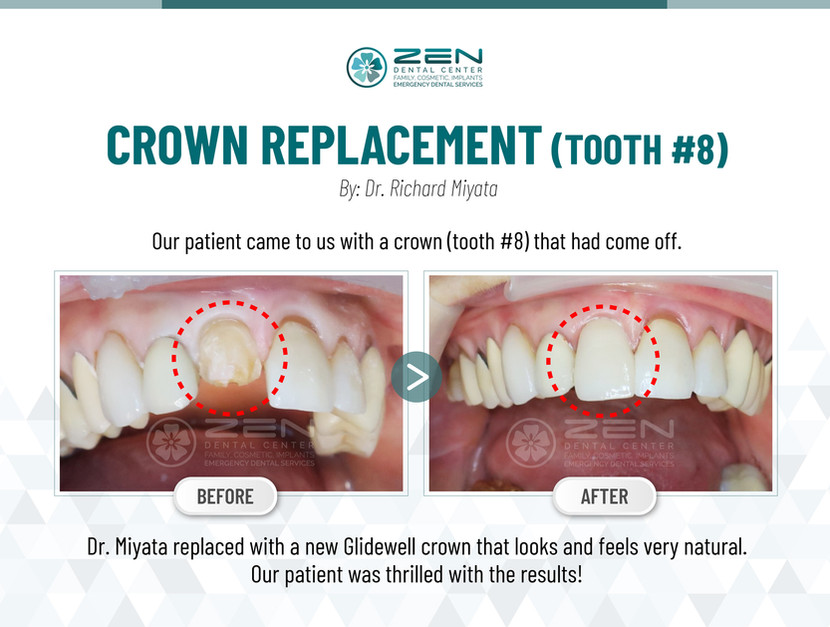 Crown Replacement (Tooth #8)