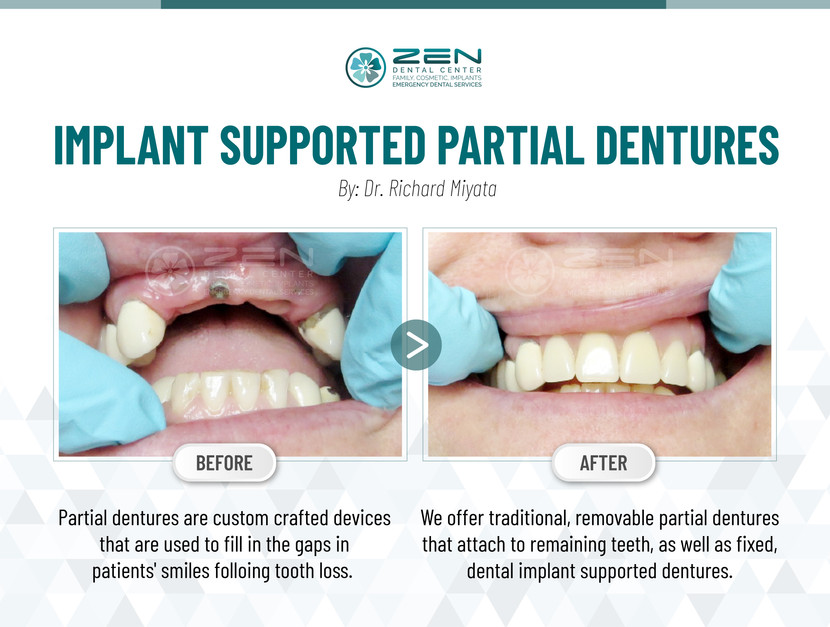 Implant Supported Partial Dentures