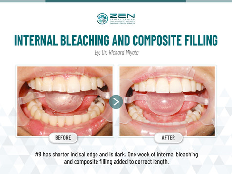 Internal Bleaching and Composite Filling #8