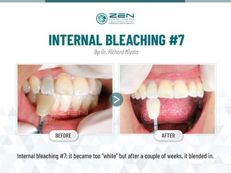 Internal Bleaching #7