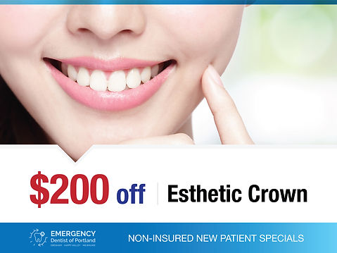 Emergency Dentist of Portland_Non-Insured New Patient Specials_$200 off Esthetic Crown.jpg
