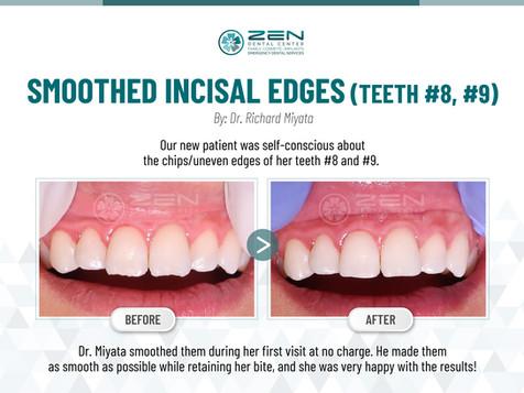 Smoothed Incisal Edges (Teeth #8, #9)