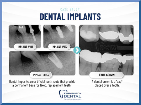 Farmington Dental_case study-2.jpg