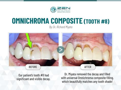 Omnichroma Composite (Tooth #8)