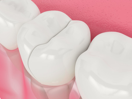 What Should You Do in a Dental Emergency? Tips from Restorative & Emergency Dentist in Salem, OR
