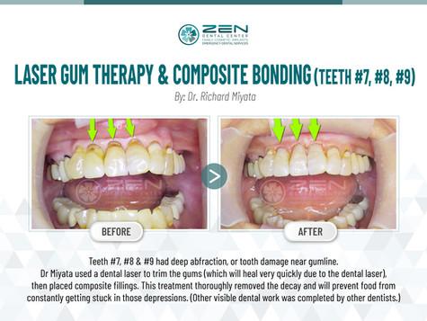 Laser Gum Therapy & Composite Bonding (Teeth #7, #8, #9)