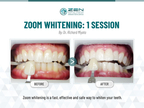 Zoom Whitening_1 Session