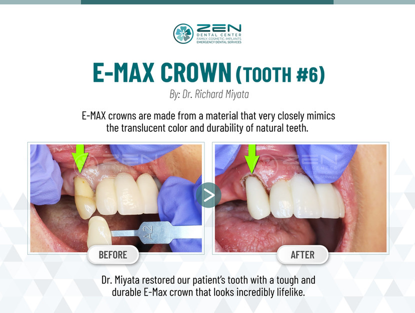 E-Max Crown (Tooth #6)