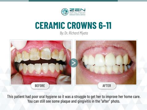 Ceramic Crowns 6-11