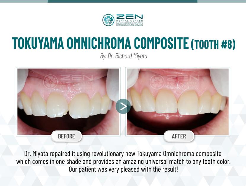 Tokuyama Omnichroma Composite (Tooth #8)