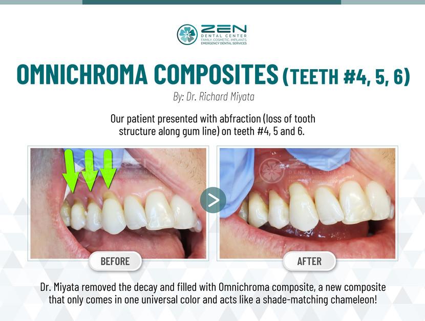 Omnichroma Composites (Teeth #4, 5, 6)