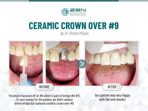 Ceramic Crown over #9