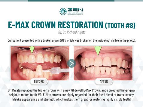 Zen Dental_E-MAX Crown Restoration (Tooth #8).jpg