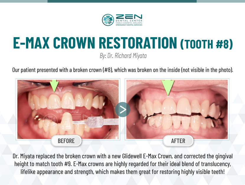 E-MAX Crown Restoration (Tooth #8)
