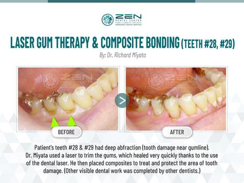 Laser Gum Therapy & Composite Bonding (Teeth #28, #29)