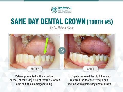 Same Day Dental Crown (Tooth #5)