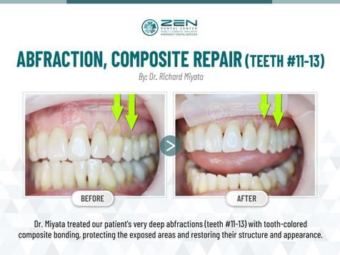 Abfraction, Composite Repair (Teeth #11-13)
